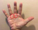 「ばね指」が多発しています