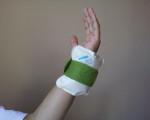 左手首の激痛